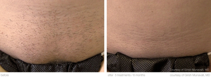 M22 axilla/hair removal BEFORE / AFTER  6x